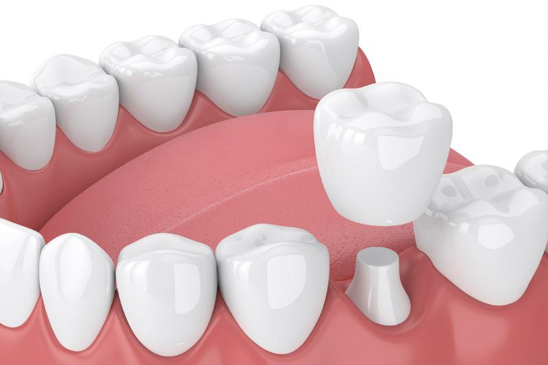 Dental Crowns in Vallejo