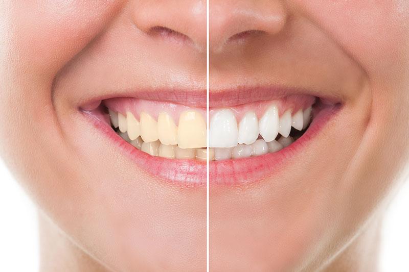 Zoom Teeth Whitening in Vallejo