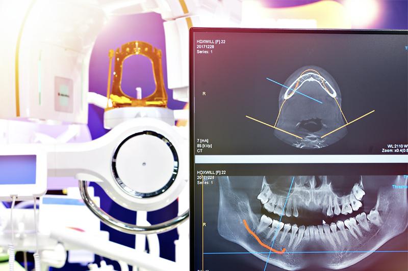 Digital X-Rays in